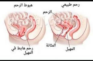 صورة شكل الرحم النازل , نزول الرحم واشكاله المختلفه