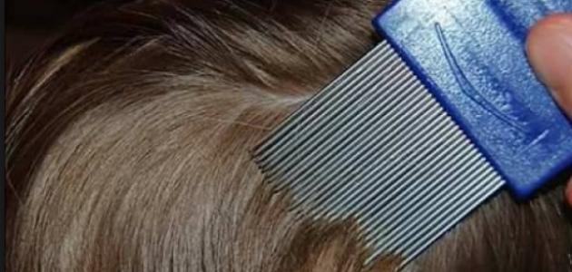 صورة تنظيف الشعر من القمل , تخلصى من حشرات الشعر