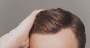 صور نصائح بعد زراعة الشعر , المحافظه على اكتمال ونجاح زراعه الشعر