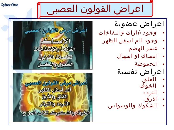 صورة اعراض القولون الهضمي , وعلاجه بالاعشاب