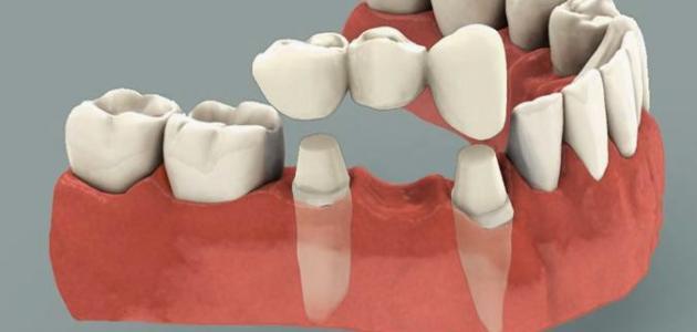 صورة افضل انواع تركيب الاسنان , افضل الاسنان التركيب