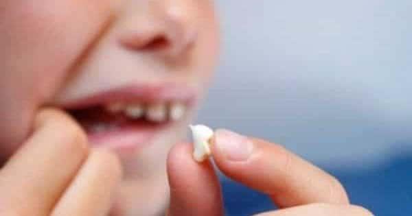 صورة تفسير الاسنان في المنام , اسرار الاسنان في المنام