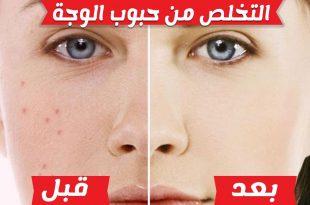 صور كيفية التخلص من الحبوب في الوجه , حبوب وجهي توجعني ماذا افعل