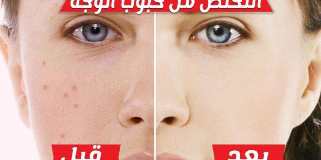 صورة كيفية التخلص من الحبوب في الوجه , حبوب وجهي توجعني ماذا افعل