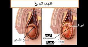 مدة علاج التهاب البربخ , اسبابه و مده العلاج