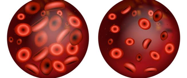 صورة ماهي اعراض فقر الدم الحاد , اسباب الانيميا الحاده