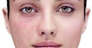 صورة علاج التهاب البشرة , بشره صافيه بدون التهابات