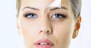 صورة علاج سواد العين , وداعا للهالات السوداء