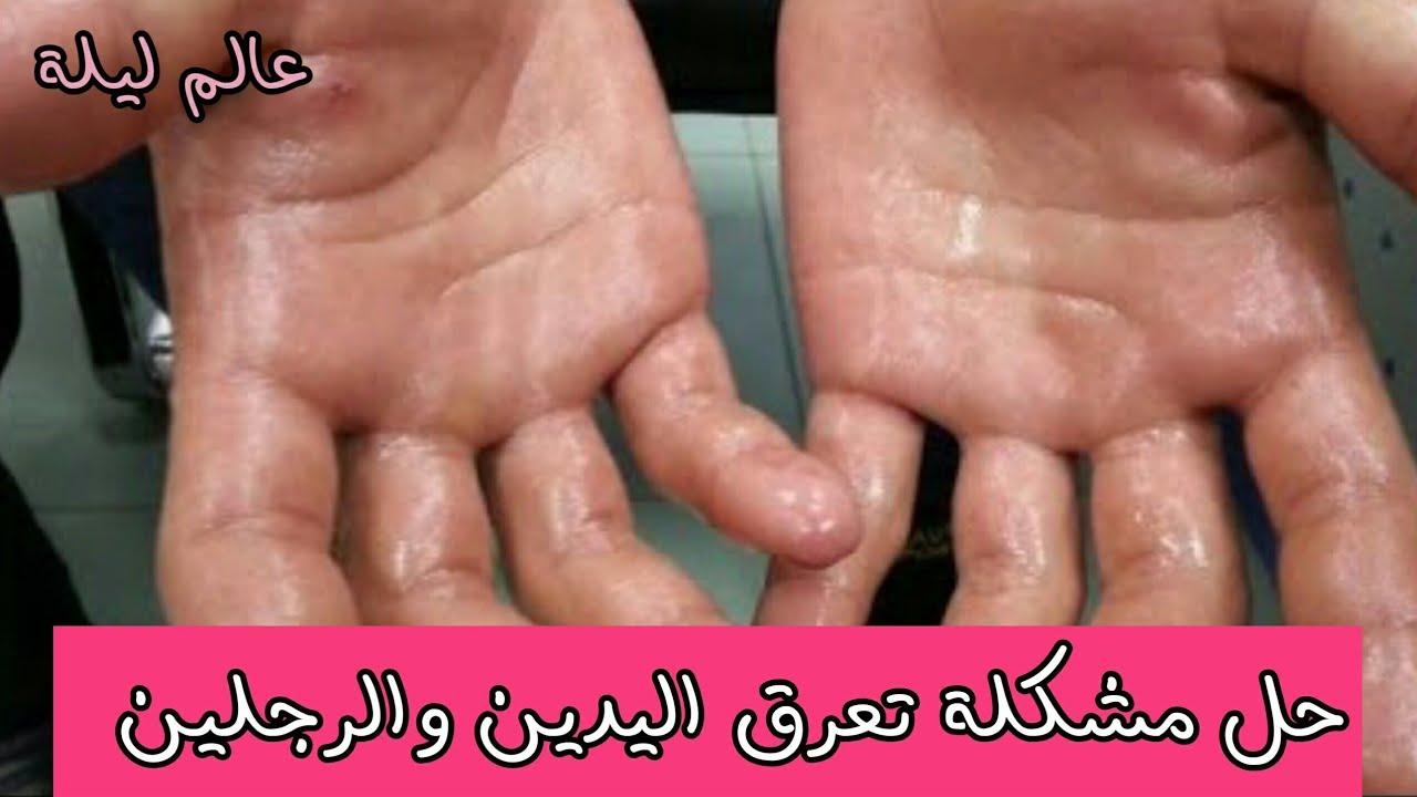 صورة علاج تعرق اليدين والرجلين , اسبابه ووصفات تسهل التخلص منه