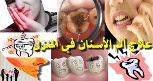 صورة ما هو علاج وجع الاسنان , وصفات طبيعيه لازاله الم الاسنان