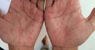 علاج مرض الزهري , تعرف على اسباب و علاج مرض الزهرى