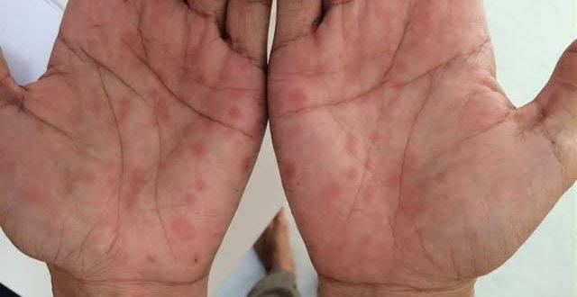 صورة علاج مرض الزهري , تعرف على اسباب و علاج مرض الزهرى