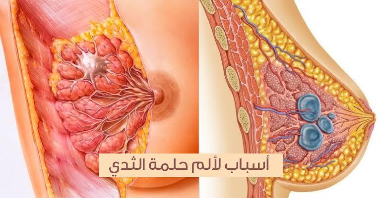 صورة اسباب حكة حلمة الثدي , التهاب جلد الحلمه و اسبابه