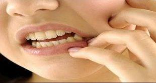 كيف تتخلص من الم الاسنان , علاج منزلي