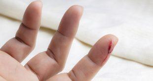 صورة علاج الجروح بالاعشاب , ازاى اعالج جروحى طبيعيا