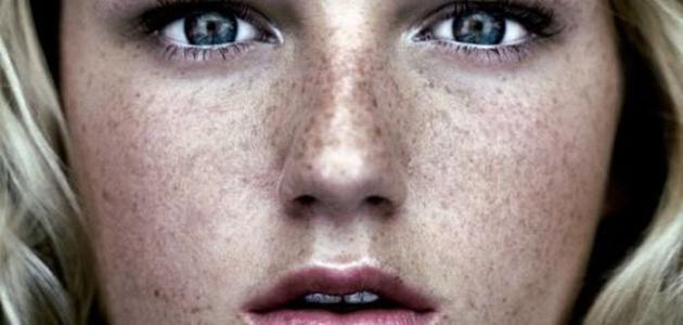 صورة ازالة النمش من الوجه , تمتعى ببشرة نقية