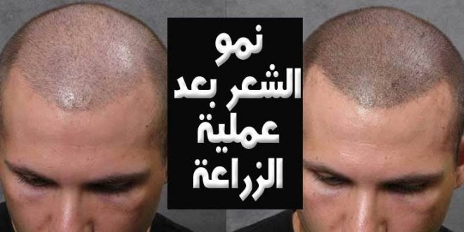 صورة تكلفة زراعة الشعر في ادمه , الحل النهائي لمشاكل الشعر