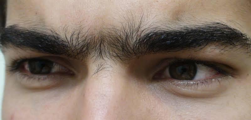 صورة الشعر بين الحاجبين , العدسه وتعريفها هنا