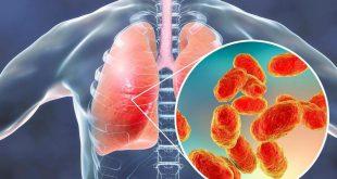 صورة علاج ذات الرئة , الالتهابات الرئويه مرض متعب للصدر