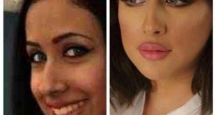 صورة فرح الهادي قبل عمليات التجميل , تعرف علي حقائق الفنانين 3965 12 310x165