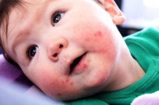 صورة حساسية الجلد عند الاطفال حديثي الولادة , امراض البيبي المعروفه