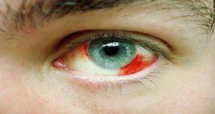 علاج نزيف العين , تعرف على اسبابه و علاج نزيف العين