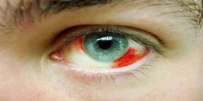 صورة علاج نزيف العين , تعرف على اسبابه و علاج نزيف العين