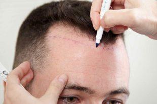 صورة كم تكلفة زراعة الشعر في تركيا , اسعار منخفضة لشعر كثيف