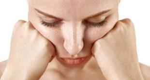 صورة النمش في الوجه , علاج النمش بطريقة نهائية
