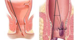 صورة اعراض البواسير بالصور ، حتى لا تصاب بالبواسير