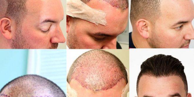 صورة مراحل بعد زراعة الشعر ، هل تساقط الشعر بعد العملية يعد فشلا لها