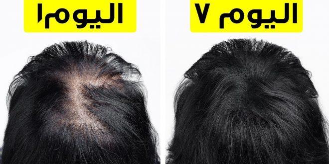 صورة كيف اجعل شعري كثيف , لشعر طويل وغزير اليكى الطريقة