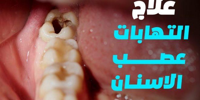 صورة علاج اعصاب الاسنان ، كيفيه تجنب ألم الاسنان