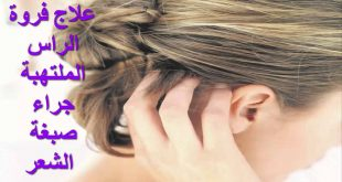 صورة شعرك فيه مشاكل حلك عندي , علاج التهاب فروة الراس