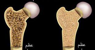 ما هو علاج هشاشة العظام